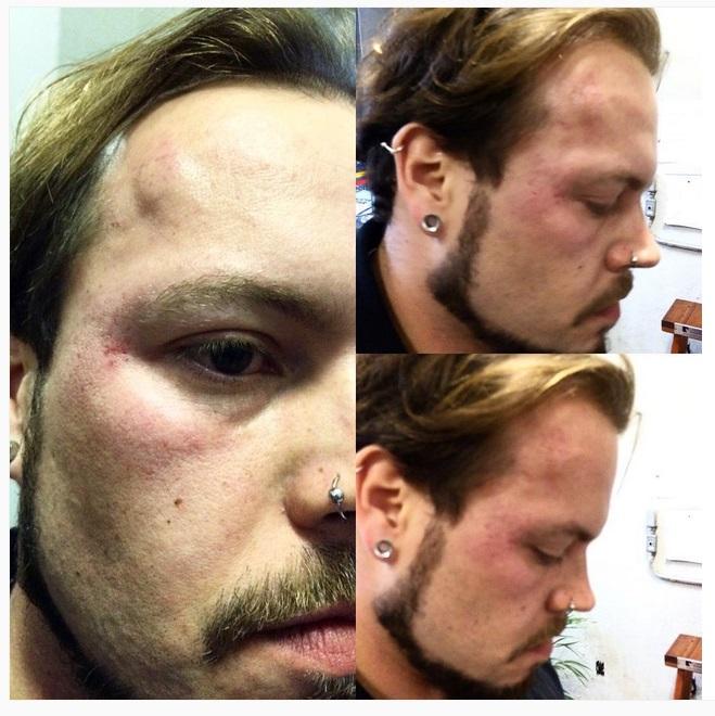 Companheiro da jornalista, Marcel Telles mostrou as marcas da agressão - Foto: Reprodução/Instagram